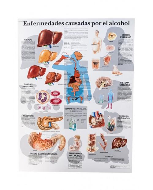 LAMINA ENFERMEDADES POR ALCOHOL 50*67